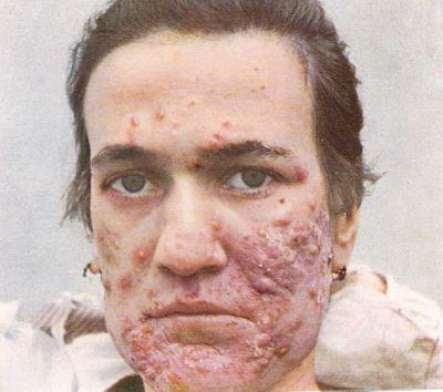 severe nodulocystic acne