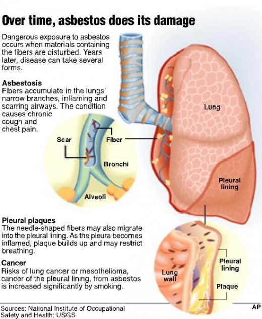 Asbestosis - lung cancer symptom