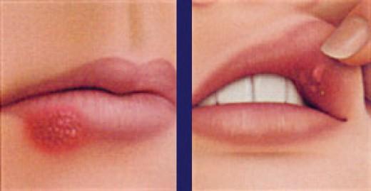 lip sores (herpes