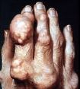 Advanced gout in the hands. By controlling the uric acid levels in the body, this can be avoided.