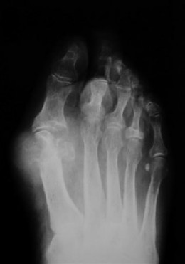 Late stage gout in the foot.  Deformations have occurred in the joint. Tophus are visible.