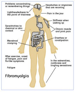 common fibromyalgia symptoms.