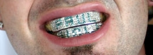 Iced Out Hip Hop Grill