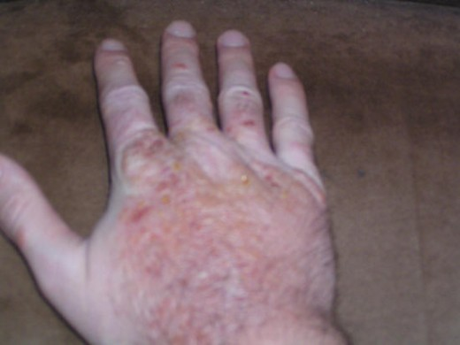 A really severe case of poison oak rash. If it looks like this go to your doctor or local emergency room as soon as possible.