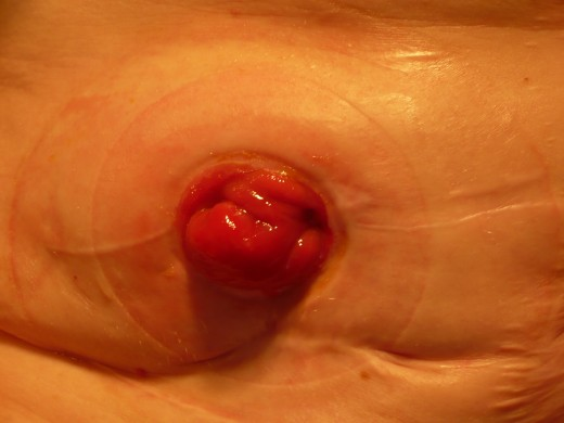 This is a stoma, which is red and moist. A stoma has no nerve endings and therefore no sensation. A bag is placed over the stoma to allow the contents of bowel to empty into it.