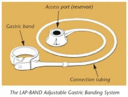 The bariatric gastric band