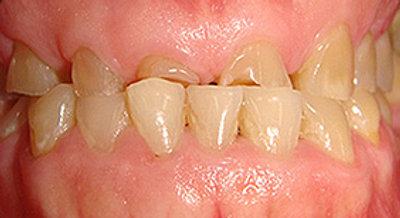 Stop teeth grinding damage
