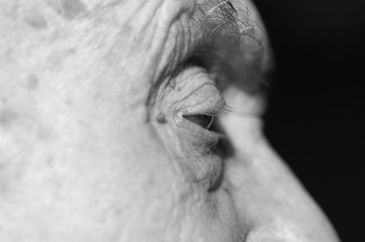 Skin tags often appear around the eyes as you age.