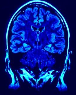 Learning Telepathy | RM.