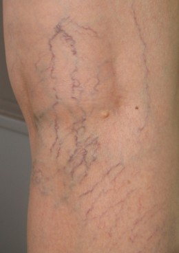 Spider and Varicose Veins