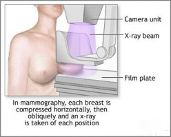 What to expect when you go for a mammogram