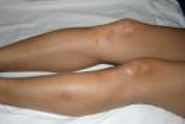 Flea bites: heck, I'd like a chance at those legs myself.  Hope this didn't happen at one of tripadviser's hotels!            photo tripadvisor.com