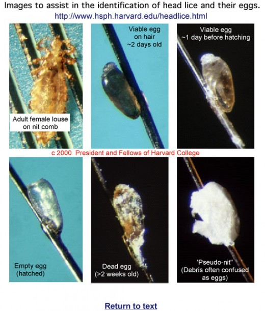 Head Lice Nits Pictures And How To Get Rid Of Head Louse
