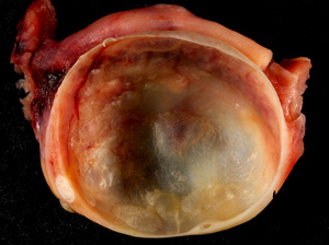 A benign ovarian cyst
