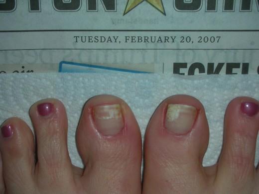 Nail fungus white spots nail fungus information white spots on toenails fungus toenail fungus remedies sciox Gallery
