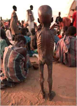 Effect of famine in Sudan,some years ago. This may be a common scene everywhere, if global warming is not controlled