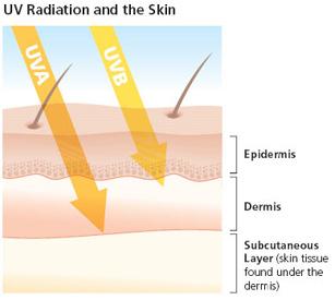 photo courtesy of skincancer.org