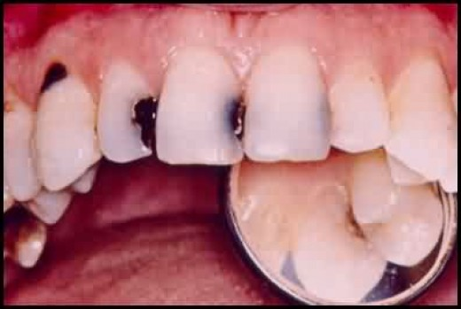 Tooth decay topnews.in