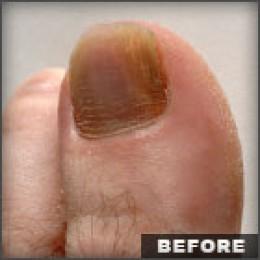 Finger Nail Fungus