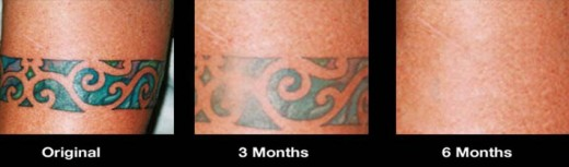 Wrecking balm reviews and ratings for How effective is tattoo removal cream