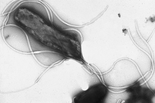 Heliobacter pylori. Image credit WikiCommons.