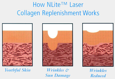 "The additional stimulation of collagen, over time, gradually fills in the ""gaps"" reducing the effects of wrinkling and acne scarring"