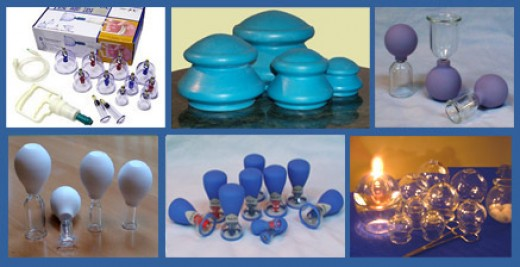 Different types of cups used in Cupping Therapy