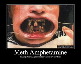 "Also known as ""Meth Mouth"", one can see how devastating the use of methamphetamine is on the body, including the teeth"