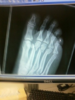 My broken foot (3 broken metatarsals)