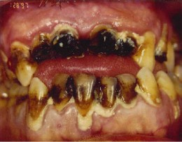 If you don't mind your teeth rotting from your head-then I suppose this isn't that bad