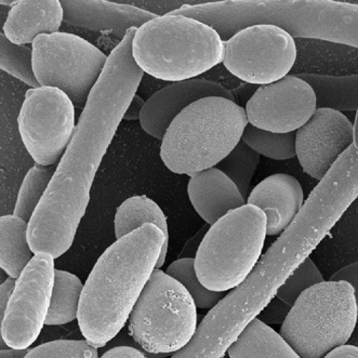 candida yeast viewed with an electron microscope