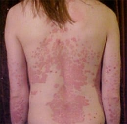 A severe case of psoriasis on her back