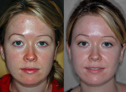 Pre and post chemical peel