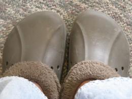 My Feet Look just like Crocs