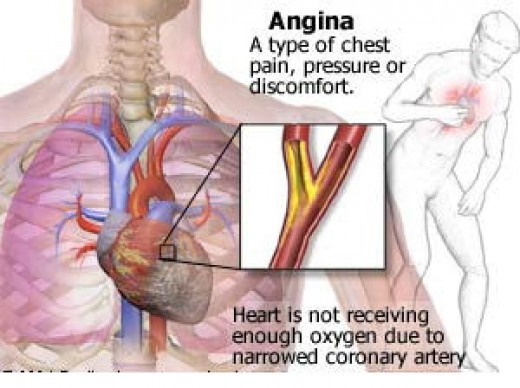 the signs and symptoms of angina Doctors give trusted, helpful answers on causes, diagnosis, symptoms, treatment, and more: dr bress on symptoms of angina in women: same as in men, but maybe more.