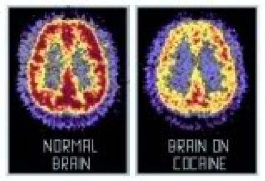 Normal Brain vs.  Overly Stimulated Brain