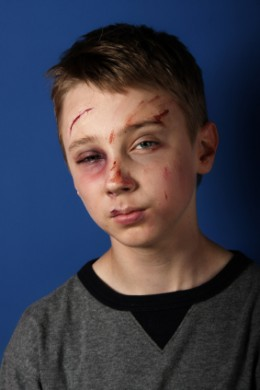 Boy: Battered & Bruised