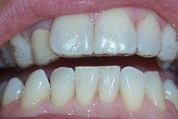 Patient with top Invisalign only in place, having whitened using Invisalign.