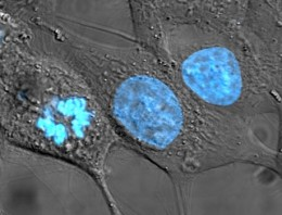 HeLa cells stained with Hoechst 33258 (blue)