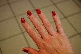 Domestic chores and strong detergents can cause wrinkling and furrowing of hands