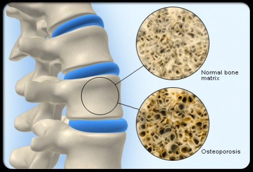 Parallel between normal, trabecular structure in the non-osteoporotic bone (above) and the reduced trabeculae of the osteoporotic bone (below).