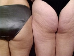 What mainly causes cellulite?
