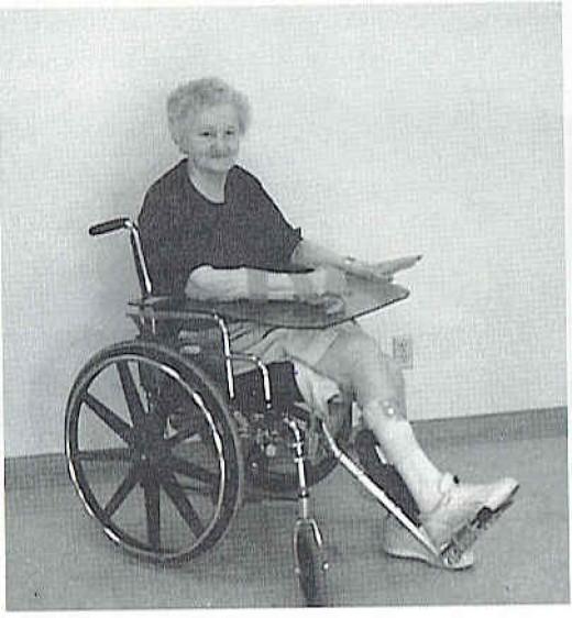 Stroke patient wearing splint with arm on lapboard to keep it in place.