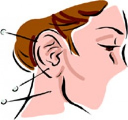 Does acupuncture help with tinnitus enfermedad