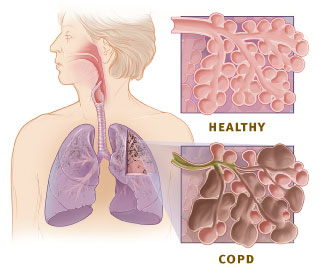 This illustration shows the respiratory system and cross-sections of healthy alveoli (air sacs) and aveoli with COPD