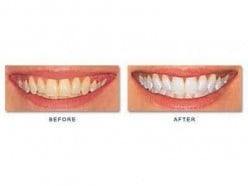 You can get dramatic teeth whitening results at the dentist!