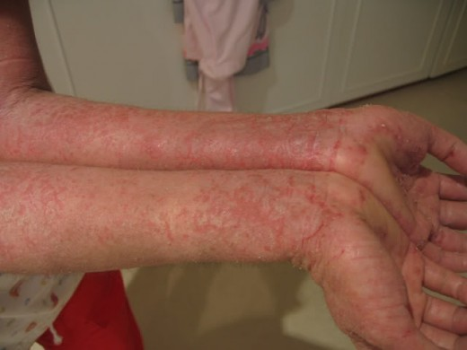Eczema on the arms