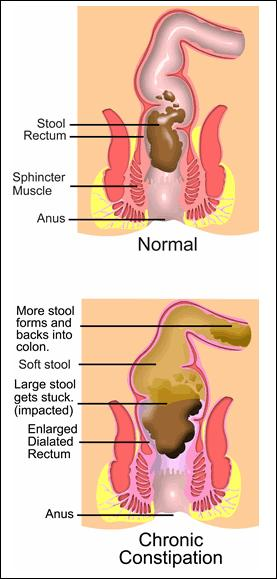 Normal and Abnormal intestine