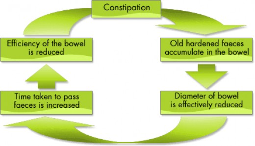 Diagram of constipation