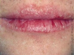 Chapped Lips - Natural Remedies for Dry Lips